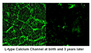 Declining into failure: the loss of ion channels in aging.title=